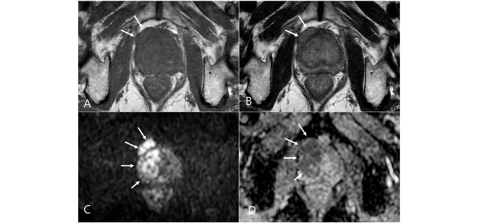 http://static.apub.kr/journalsite/sites/urology/2020-001-02/N0050010202/images/urology_01_02_02_F3.jpg
